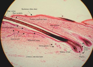 thin skin a cross section, labeled